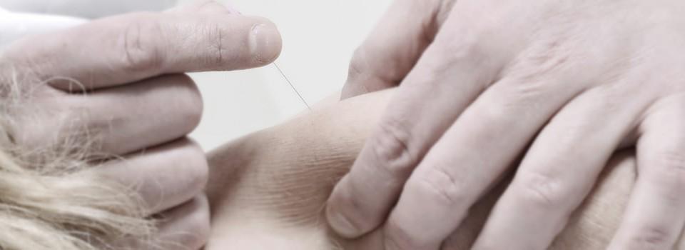 Fokko Plas - Fysiotherapie - Manuele therapie - Dry needling